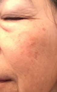right cheek mask of spots