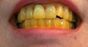 Yellow for Yellowing Teeth?